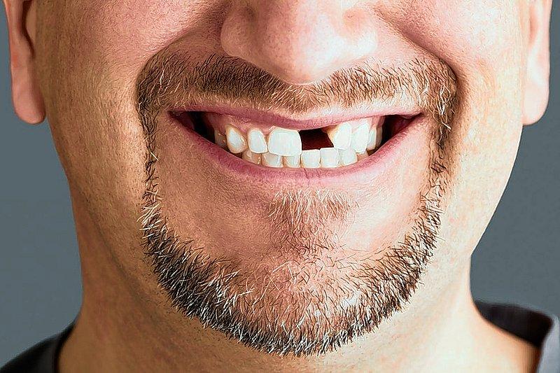 Зубы во сне означают родных и близких людей, а также то, что с ними связано.
